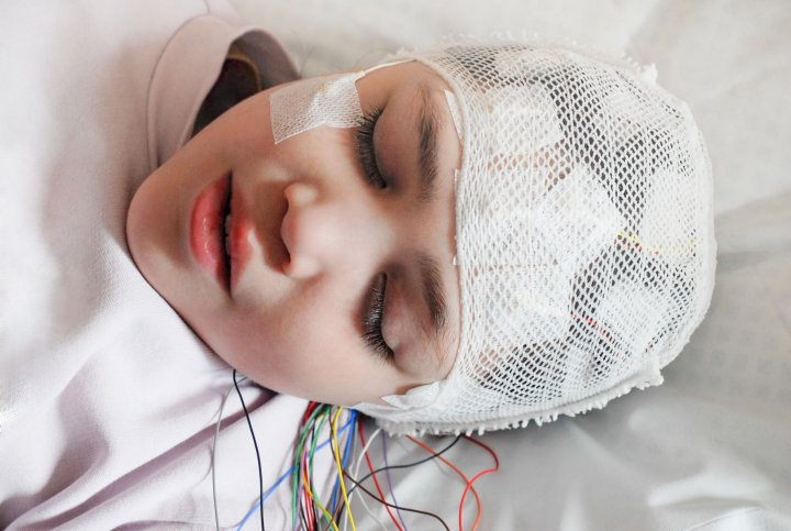 Epilepsie -  Ein Mädchen ist am Kopf mit Elektroden verkabelt und liegt auf einer Liege. Der Bildausschnitt zeigt nur den Kopf des Mädchens. Sie hat die Augen geschlossen.