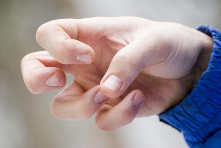 Botulinumtoxin - Eine Hand mit zusammen gezogenen Fingern.