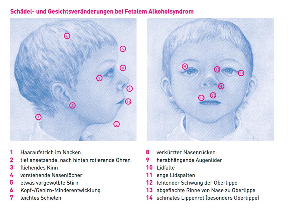 Abbildung eines Kindes mit für FAS typischen Merkmalen